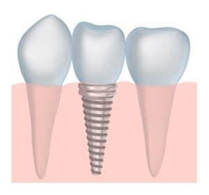 dental implants dentist in Sugar House and Millcreek UT