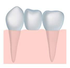 dental bridges Sugar House dentist Salt Lake City